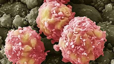 Células tronco são usadas no tratamento de AVC (acidente vascular cerebral)
