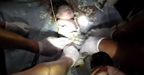 El video muestra rescatadores serruchando una sección de la tubería para rescatar al bebé.