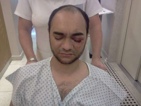 O fotógrafo Sérgio Silva, da Futura Press, sofreu lesões no olho e uma fratura na órbita