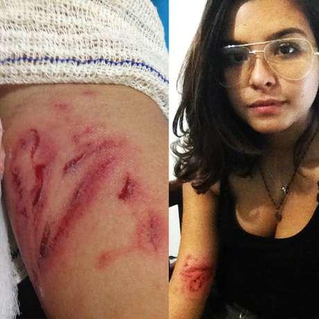Estudante postou foto com marcas da agressão sofrida durante o protesto