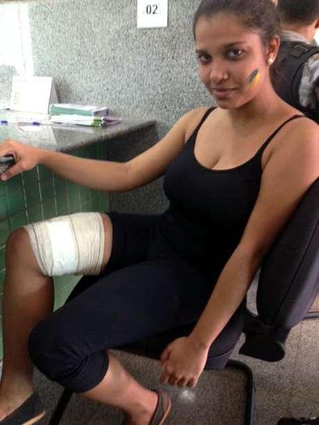 Larissa Souza foi baleada na perna com um projétil de borracha durante as manifestações