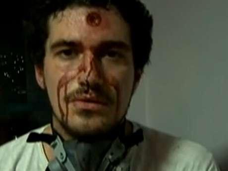 Repórter gravou vídeo ensanguentado após ser atingido durante confrontos nos protestos no Rio de Janeiro