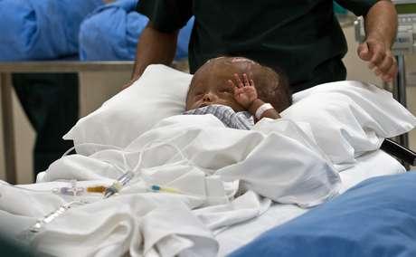 A menina Roona Begum, 1 ano, sofre de hidrocefalia - doença que provoca acúmulo de fluido no cérebro
