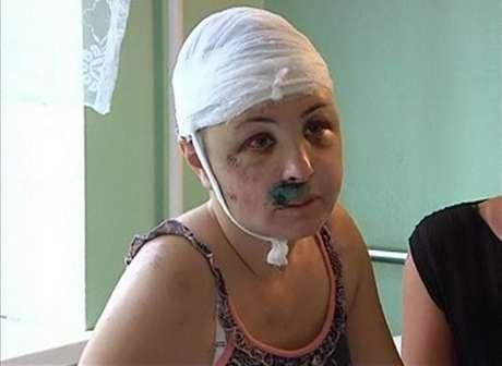 Iryna Krashkova, vítima de estupro na Ucrânia: policiais acusados de envolvimento e revolta na vila de Vradiyevka