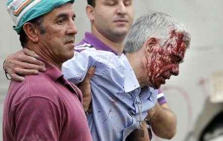 <p>O maquinista Francisco José Garzón, ferido após o acidente</p>