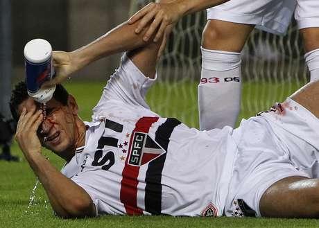 Paulo Henrique Ganso sangrou muito após bater com a cabeça no poste