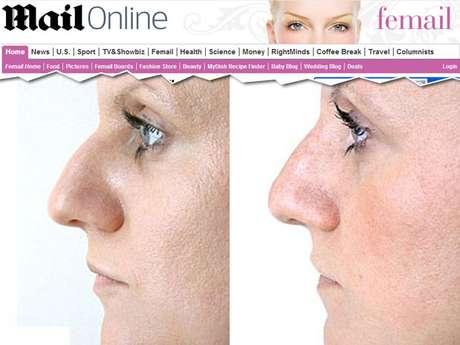 <p>Um novo procedimento modela o nariz&nbsp;irregular sem cirurgia</p>