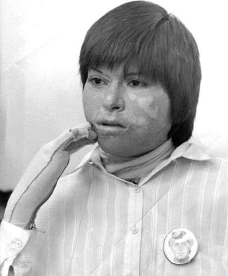 Carmen Gloria Quintana sobrevivió a brutal ataque.