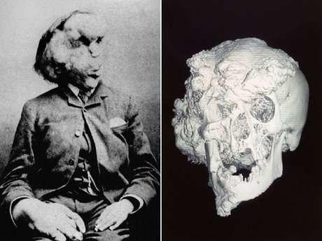 Anomalias do 'homem elefante' são consideradas as mais severas já encontradas até hoje; face foi especialmente comprometida com crescimento ósseo exagerado