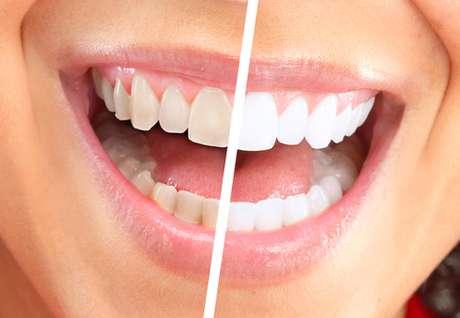 Clareamento Dental Sem Supervisao Pode Causar Ate Cancer