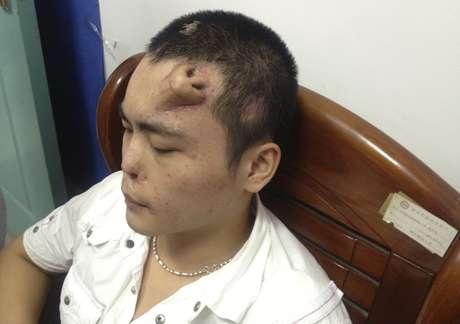 Nariz artificial aparece na testa de paciente antes do transplante para substituir o nariz original