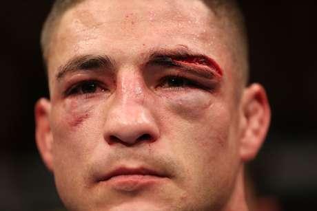 Diego Sanchez exibe corte no supercílio obtido na derrota para Gilbert Melendez em emocionante luta pelo UFC 166