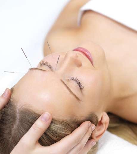 <p>Bem-estar e funcionamento melhor de todo o corpo também são benefícios trazidos pela acupuntura</p>