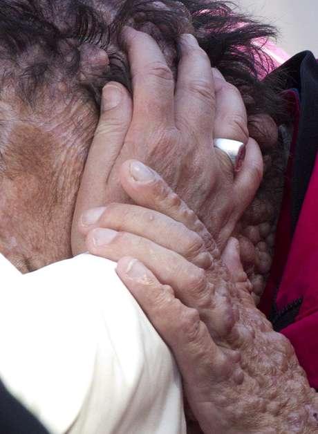 El papa Francisco puso hoy sus manos sobre la cabeza deformada de una persona visiblemente enferma, y antes de la audiencia recibió en la residencia de santa Marta a una niña de un año y medio también muy grave y por la que pidió a los fieles que rezaran por ella.
