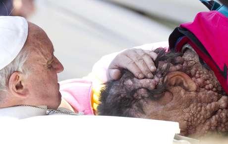 <p>Francisco se detuvo durante su recorrido por San Pedro para acercarse a un hombre que padece neurofibromatosis.</p>