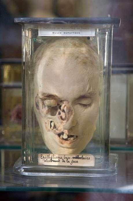 <p><strong>Museo Dupuytren, París.</strong> Fundado por el médico Guillaume Dupuytren, profesor de cirugía en la Facultad de Medicina de Medicina de París, este museo bizarro alberga decenas de ejemplos de anatomías patológicas, como malformaciones y tumores. Aquí podrás ver piezas de cera, esqueletos reales y órganos conservados en tarros con formol.</p>