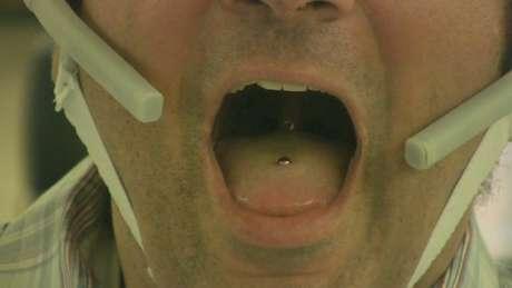 O piercing do tamanho de um feijão produz um campo magnético que muda quando a língua se movimenta