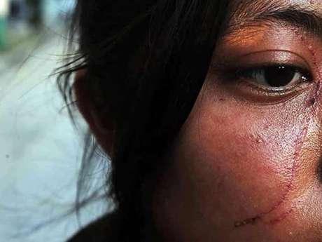 El Copred ha documentado que agresiones por discriminación, además de lesiones físicas, afectan emocionalmente a las personas.