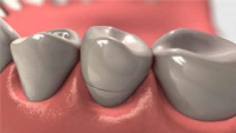 Coroas de cerâmica