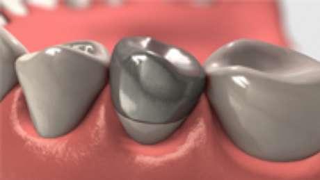 Coroas metalocerâmicas
