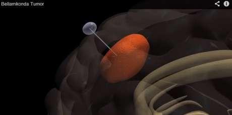 Segundo especialistas, a técnica pode ser eficaz contra um dos tipos mais agressivos de câncer, o gliobastoma