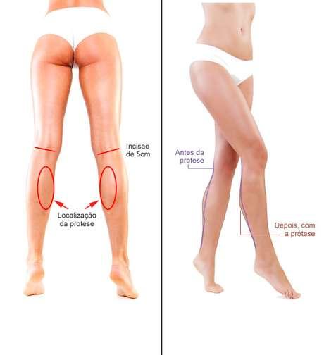 O corte é feito atras do joelho e a prótese é introduzida na região medial da panturrilha
