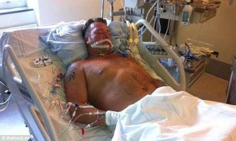 Jimi Fritze, 43 anos, só teve a vida salva porque outro médico, que retornou de férias, achou conveniente avaliar melhor suas condições