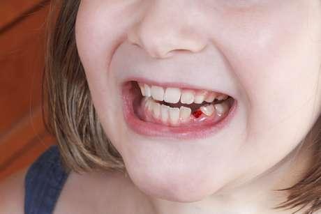 Adulto en diente flojo