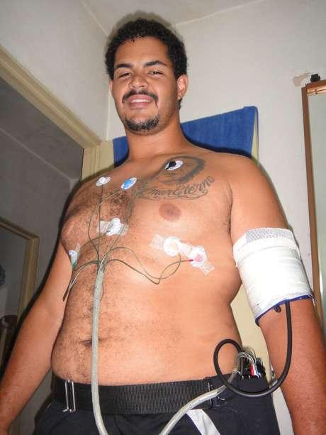 <p>Robson foi diagnosticado com hipertensão grave e até hoje toma medicamentos para controlar o problema</p>