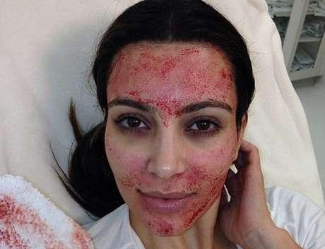 <p>Tratamento estéticoda socialitepromete ajudar as mulheres na conquista de uma pele mais jovem</p>