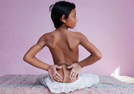 <p>Arshid Ali Khan, de 13 anos, terá que passar por uma cirurgia devido à anomalia. Ele não consegue andar</p>