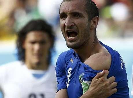 Zagueiro Chiellini mostra ombro após mordida de Suárez.