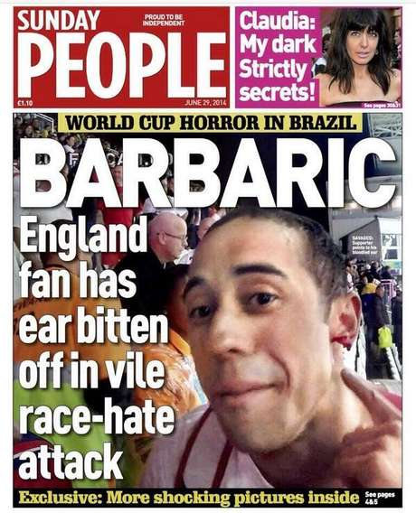 Sunday People mostra o torcedor sem um pedaço da orelha após a partida entre Inglaterra e Uruguai