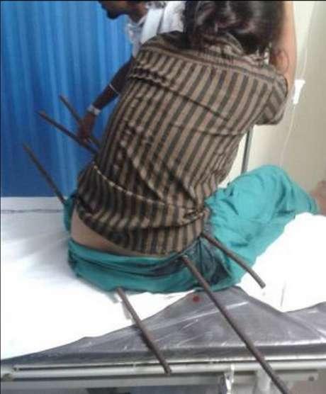 Ao cair do telhado de uma construção na ìndia, a jovem foi perfurada por três barras de ferro