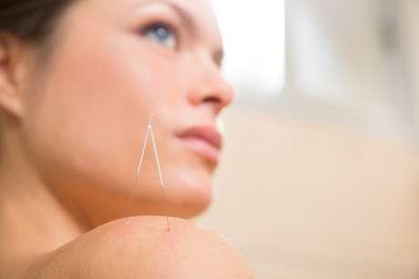 Além de tratar problemas como dores nas costas e ansiedade, a acupuntura também pode ser aplicada em prol da beleza feminina