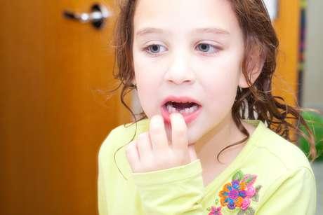 Para prevenir problemas es aconsejable que los pequeños visiten al dentista periodicamente