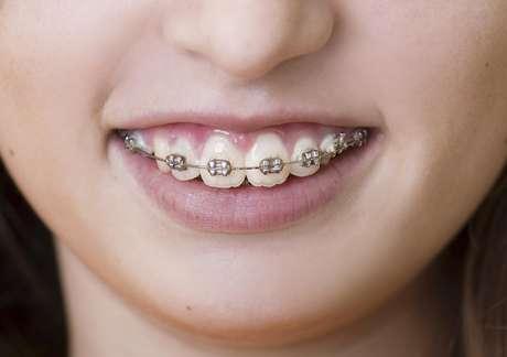 <p>Muchos preadolescentes y adolescentes requieren aparatos dentales para corregir dientes apiñados o girados en relación con los arcos dentales</p>