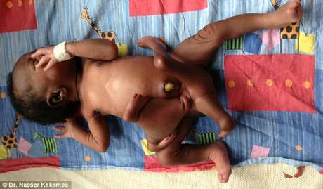 Menino nasceu com quatro pernas e quatro braços em cidade de Uganda