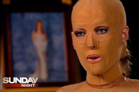 Dana foi atacada por uma mulher enciumada e teve a maior parte de seu corpo queimada