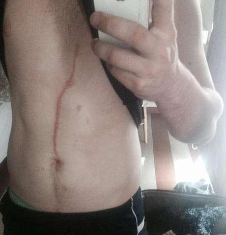 A ferida foi causada por uma aranha que estava se movendo pelo corpo do australiano