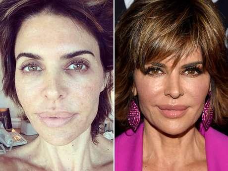 <p>Lisa postou foto sem maquiagem para aderir a campanha</p>