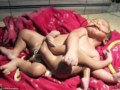 O menino nasceu com 4 pernas e 4 braços por causa de um gêmeo parasita, mas é venerado como um deus
