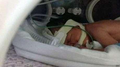 Reece nasceu nove semanas antes do previsto, durante as férias da família