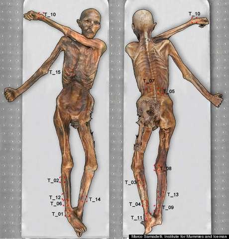 Tatuagens encontradas em fósseis levam cientistas a acreditar que faziam parte de rituais de acupuntura