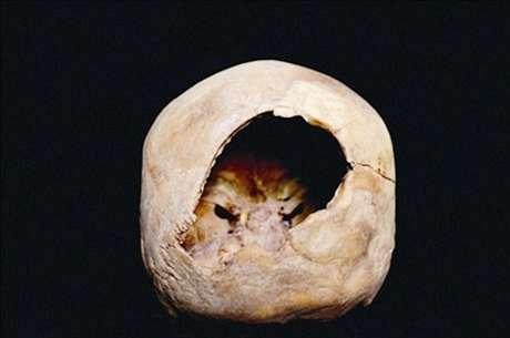 Especialistas garantem que o buraco é relacionado a uma forma primitiva de craniotomia