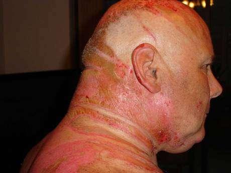 Gregory disse que Teresa Gilbertson, 60 anos, ficou o agredindo verbalmente por semanas, antes de ser atacado
