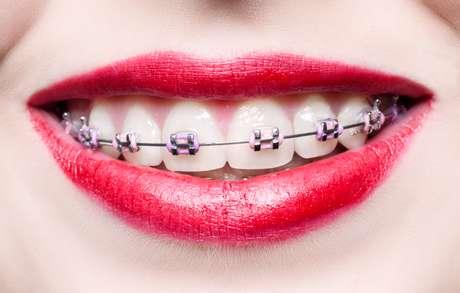 <p>Esse recurso além de disfarçar o uso, pois ninguém imagina que uma pessoa com aparelho use dentadura, ainda tende a rejuvenescer o paciente</p>