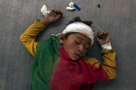 Menino machucado dormindo do lado de fora de um hospital lotado no Nepal (27/04/2015)