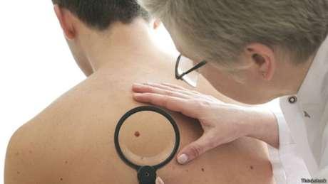 Pesquisa foi feita com 945 pacientes com melanoma avançado