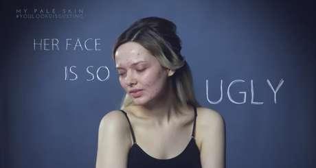 """Em Ford recebeu críticas em relação à sua pele com acne, como """"o rosto dela é tão feio"""""""